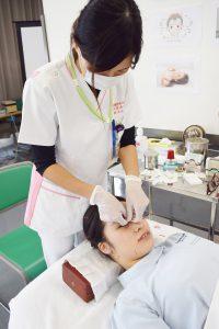 美容鍼灸実演①